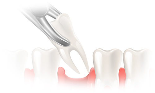 tooth-extraction-1
